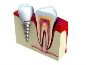 3D and cut through of a dental implant next to a real tough to compare